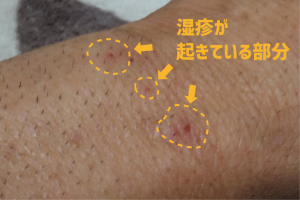 ムダ毛の部分が湿疹を起こしている状態