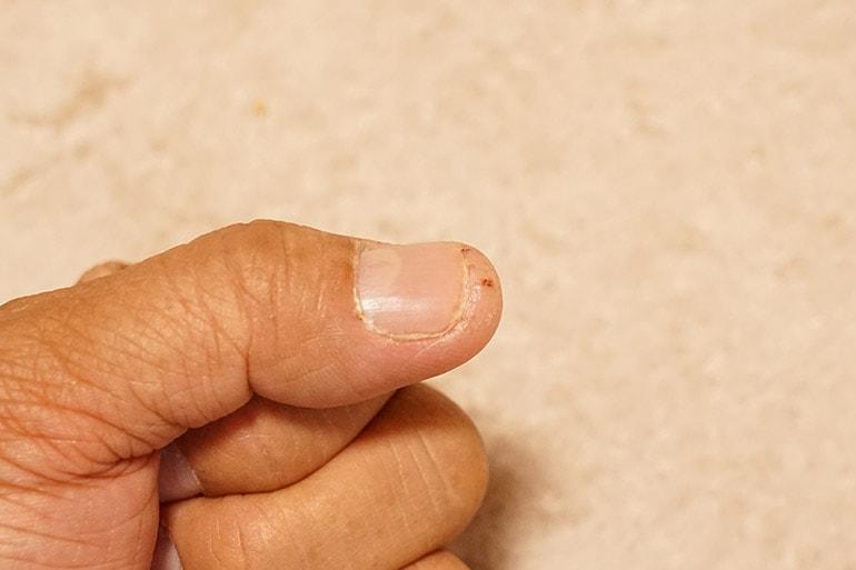管理人タノ助の指先のひび割れ